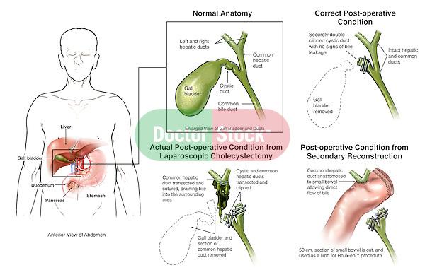 Laparoscopic Cholecystectomy With Bile Duct Injury