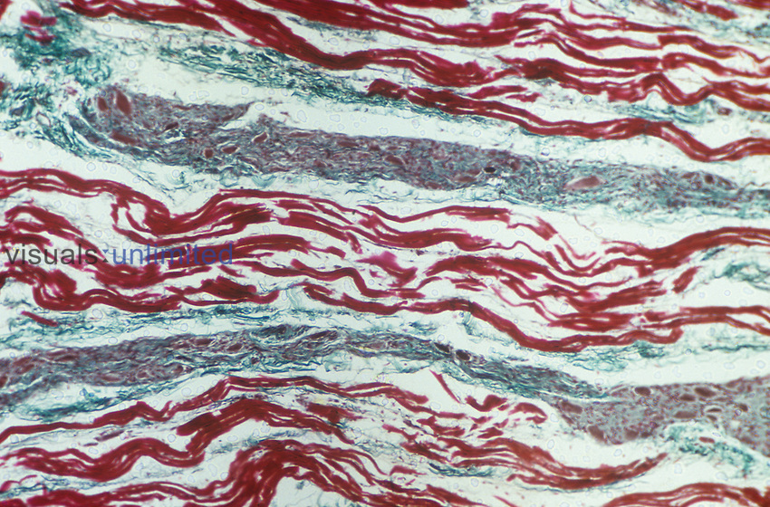 Cardiac muscle showing Purkinje fibers in a bundle of His, longitudinal section. LM X80.