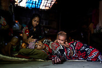 Musammat Shahida, top, a Rohingya from Myanmar, takes care of her sister Musammat Somuda suffering from fever at a camp for Rohingya people in Ukhiya.