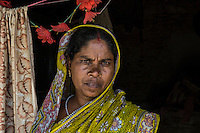 "Gurubari Mahato, 35 years old, from  Dhatkidih. In 2009, she was accused of witchcraft by a bride living in the same village, who fell sick just hours before her marriage. After being attacked and threatened with rape by the bride's brother, she finally had her case dismissed during a village meeting. ""I just saved myself because I had enough money to keep on fighting against my accusers. Otherwise, I would have faced so many problems""."