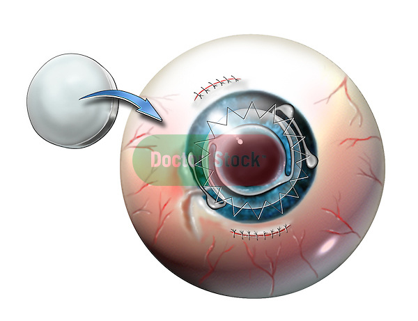 cataract lens has been removed, IOL anterior chamber lens is placed & the scarring cornea has been replaced with a donor cornea.