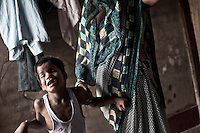 Yogesh (8 years) from Seikhpur in Jajmau area, is now a nurological patient. After 4 days of his birth he was affected by Jaundice which affected his neurological state. People living in Jajmau are affected by Chronic Gastrointestinal disorder and liver problem due to use of chemically contaminated water. The waste water from tanneries contaminated the ground water and also mix up with drinking water supplied by the local government due to poor maintenence of pipe lines. Kanpur, Uttar Pradesh, India, Arindam Mukherjee.