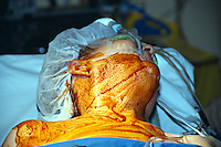Carotid endarterectomy surgery. Patient has been anaesthetized and postioned on operating table with head turned to the left, the side of the head and neck have been painted with an iodine based antiseptic solution...©shoutpictures.com.john@shoutpictures.com