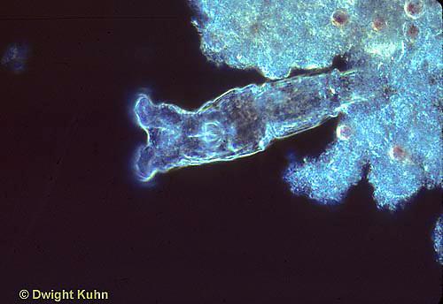 PR03-001z  Rotifera - Philodina spp.   250x