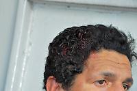 SAO PAULO, SP, 24.06.2014 - AGRESSAO MORADOR DE RUA Vinicius dos Santos de 38 morador de rua do bairro da Liberdade foi agredido nesta tarde por dois outros moradores de rua na região central.Os agressores não foram encontrados. (Foto: Kevin David - Brazil Photo Press)