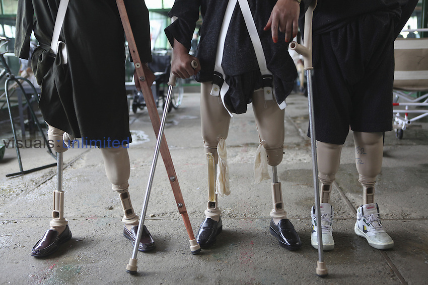 Patients with artificial legs in an orthopedic center in Afghanistan