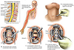 Spine Surgery - Herniated Discs with Anterior Cervical Spinal Fusion Procedure. The following images are shown in this series of medical illustrations: 1. pre-operative sagittal cut-away through the spine revealing disc herniations at C4-5 and C5-6, 2. Right arm pain and radiculopathy, 3. Surgical incision into the neck, 4. Two level disc removal, 5. two level Preparation of the fusion sites, and 6. Placement of bone graft and fixation plate and screws fusing C4-C6.