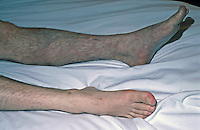Ischaemic left leg of drug addict caused by accidental self injection of drugs into artery instead of vein. Ischaemia is a decreased lack of oxygenated blood to a body organ or part. This image may only be used to portray the subject in a positive manner..©shoutpictures.com..john@shoutpictures.com