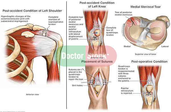 This custom medical exhibit reveals damages to the left shoulder and knee. In addition to the multiple injuries shown, several surgical steps describe the operative repair of the knee soft tissue injuries.