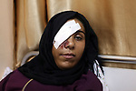 Palestinian girl Mai Abu Ruwaida, 23, who lost her eye by Israeli troops during clashes at Gaza-Israel border, lies on bed at a hospital, in Gaza city on December 7, 2019. Photo by Mahmoud Ajjour