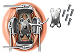 Spine Fusion Surgery Step - Anterior Cervical Fusion with Neck Plate and Screws. This stock illustration features the placement of an Orion fixation plate in a standard Fusion of the Anterior Cervical Spine