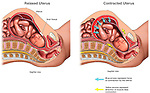 Labor and Delivery Complications - Uterine Rupture. This full color custom medical exhibit explains the mechanism of uterine rupture with two illustrations of a fetus within the uterus of its mother. The first illustration shows the position of the fetus before the birth starts and scarring from a previous cesarean section is indicated. The second image shows the fetus beginning to move and the stretching of the uterine wall to accommodate it and how the scarred region is jeopardized.