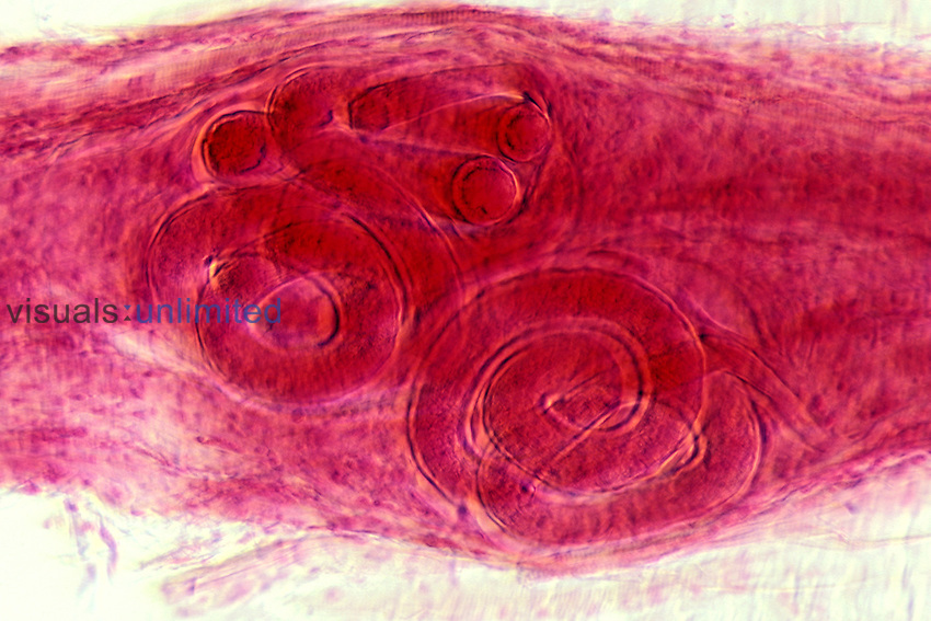 Trichinella spiralis Nematode Worms encysted in muscle. LM