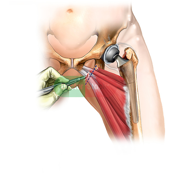 This stock medical image reveals the sharp surgical release of the adductor muscle tendons following a total left hip replacement.