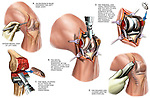 Total Knee Joint Replacement Surgery. This medical illustration series shows the surgical steps involved in a total left knee joint replacement procedure.