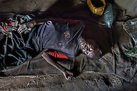 "N. Uganda, Kitgum District. ""Samuel,"" (37 yrs), had 3 brothers who were killed by rebels. He has HIV AIDS & suffers from depression. He can't walk & shifts from place to place on his buttocks, elevating his swollen feet from the ceiling. He relies on visits from a PCAF social worker and help from a neighbors & a sister for food, water & his ART/HIV medication. His Christian beliefs prevent him from suicide, thus continuing on with what he feels is a worthless & futile life."