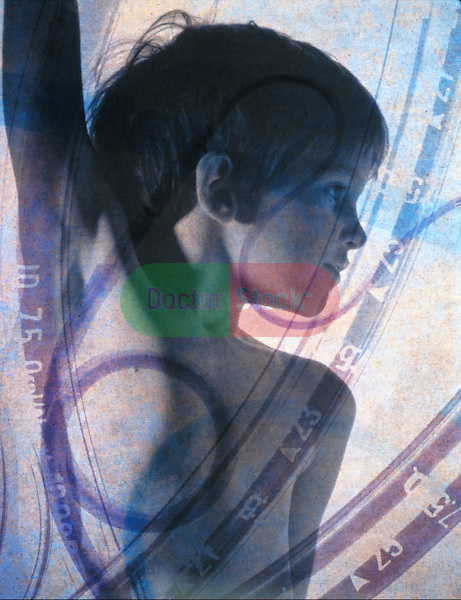 multiple exposure of young boy with naso-gastric tubes