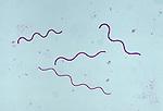 Filamentous Cyanobacteria (Arthrospira). LM X75