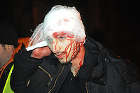 Protesters helps each other with. They have been seriously  injured  during the intense clashes with the riot police, in the attempt to  storm of the Kiev city council building, after  the Ukrainian  government's decision to stall on a deal that would bring closer ties with the European Union.