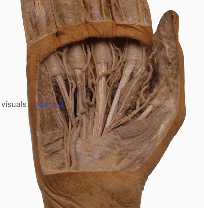 Dissection of right palm, palmar arch arteries, flexor tendons, tendon sheaths, digital arteries and nerves.
