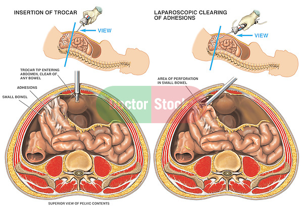 Laparoscopic Surgery to Remove Bowel (Small Intestine) Adhesions.