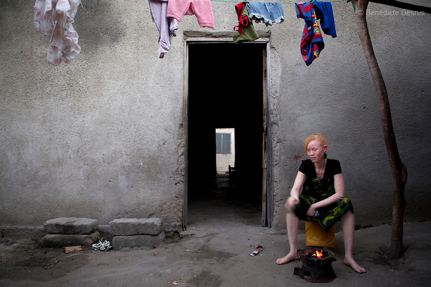 June 26, 2010 - Dar Es Salaam, Tanzania - Janette Anatoli, a 27 year old Tanzanian albino prepares dinner in the backyard of her house in Dar Es Salaam. Albinism is a recessive gene but when two carriers of the gene have a child it has a one in four chance of getting albinism. Tanzania is believed to have Africa' s largest population of albinos, a genetic condition caused by a lack of melanin in the skin, eyes and hair and has an incidence seven times higher than elsewhere in the world. Over the last three years people with albinism have been threatened by an alarming increase in the criminal trade of Albino body parts. At least 53 albinos have been killed since 2007, some as young as six months old. Many more have been attacked with machetes and their limbs stolen while they are still alive. Witch doctors tell their clients that the body parts will bring them luck in love, life and business. The belief that albino body parts have magical powers has driven thousands of Africa's albinos into hiding, fearful of losing their lives and limbs to unscrupulous dealers who can make up to US$75,000 selling a complete dismembered set. The killings have now spread to neighboring countries, like Kenya, Uganda and Burundi and an international market for albino body parts has been rumored to reach as far as West Africa. Photo credit: Benedicte Desrus