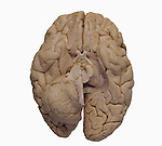 Base of the human brain showing the cerebrum, cerebellum, and brainstem. One side of the cerebellum and brainstem has been partially removed to reveal the path of the optic nerve winding backwards from the cross-shaped optic chiasma.