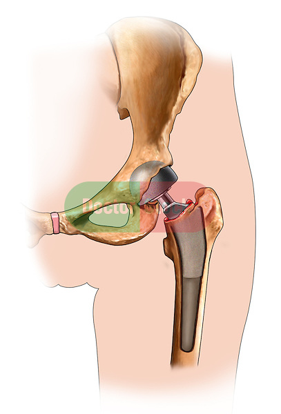 Hip Replacement - prosthesis in place ; this medical illustration illustrates the prosthesis in place during a hip replacement procedure.