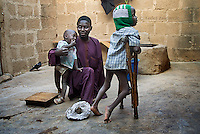 Aminu Ahmed Tudun-Wada, 47 (M), chairman of KPVTA, with two of his children at his home in Kano. Umar (R) is his only child affected by polio. He was born in 2003 when immunization was boycotted in the State of Kano and its surroundings; he contracted polio few months after his birth.