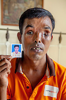 Shabdar Ali, 31, is from Bangladesh and has been in Singapore since 2008 working as an electrician in different sites, including the Marina Bay Sands. He was injured by loose cable that hit him in the face, destroying his jaw and eye. He lives now at Debbie Fordyce's house. Fordyce is the founder of the NGO Transient Workers Count Too.
