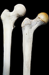 Epiphysis site in femur. Right, 14 year old. Left, adult ossified.