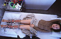 A patient called San Xu measures her progress, her height has increased by 9 cm in around 4 months. Patients in a Guangzhou hospital are able to extend their leg length after a complicated operation which involves breaking their legs below the knee and placing a steel pin. The legs are stretched using a metal cage. The patients must wait for around 6 months in bed. ..PHOTO BY SINOPIX