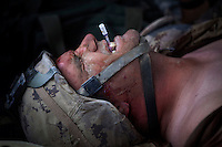 A wounded Canadian soldier winces in pain as he is treated by US Army medics from Charlie Company, Sixth Battalion, 101st Aviation Regiment near Kandahar. He was wounded by shrapnel to his arm.
