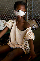A young Haitian girl sits on a bunk after receiving treatment at an ad hoc medical clinic at MINUSTAH's logistics base after an earthquake measuring 7 plus on the Richter scale rocked Port au Prince Haiti just before 5 pm yesterday