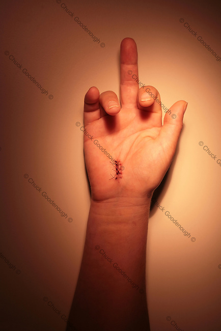 Photo of a hand with stitches in it from carpal-tunnel surgery...flipping the finger.