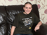 Grace Gallagher after she had her head shaved for the Today FM Shave or Die fund. Photo:Colin Bell/pressphotos.ie