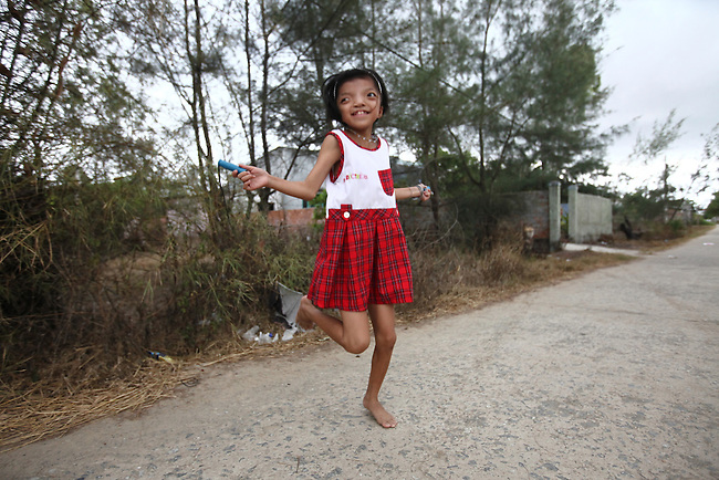 Nguyen Thi Ly, 11, skips rope in her village south of Da Nang, Vietnam. Her grandfather served in the North Vietnamese Army during the Vietnam War, and she is a third generation victim of dioxin exposure, the result of the U.S. military's use of Agent Orange and other herbicides during the conflict more than 40 years ago. The Vietnam Red Cross estimates that 3 million Vietnamese suffer from illnesses related to dioxin exposure, including at least 150,000 people born with severe birth defects since the end of the war. U.S. officials still deny that dioxin is to blame for widespread health problems in Vietnam.