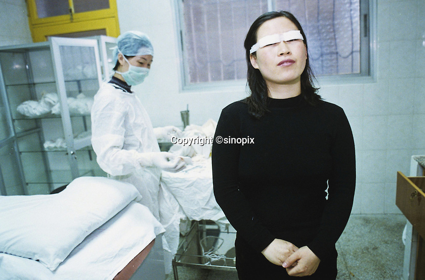 Gou Xiao immediately after an operation to widen her eyes in Shenzhen, China.  .02-DEC-99