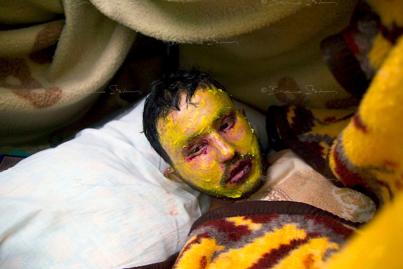 Baghdad, Iraq, March 22, 2003.Yarmuk Hospital, Mohammad Yassin, 21, a butcher from the Dorra neighbourhood, was wounded by the US bombardment  he suffers from extensive second degree burns on more than 75% of his body.
