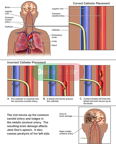 Catheterization - Incorrect Placement of Swan-Ganz Catheter with Subsequent Embolism and Stroke. This medical exhibit features multiple images describing correct vs. incorrect placement of a Swan-Ganz catheter into the right jugular region. The medical illustrations picture the catheter inserted through the jugular vein into the adjacent carotid artery. Over time a thrombus developed at the catheter tip, which eventually broke free resulting in a clot to the brain and subsequent brain injury.