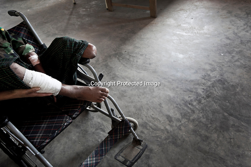 A KIA combatant sits in a wheelchair as he recovers after had been injured and lost his leg during heavy clashes with the Burmese army at the militar hospital in Laiza stronghold city. Fierce clashes have taken place since the ceasefire was broken out by the Burmese army last June 2011. During months the fighting were spread out along the Kachin State leaving more than 40,000 displaced persons and refugees (a conservative estimating) in accord with the humanitarian aid groups.