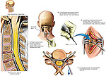 Spine Surgery - C4-C5 and C5-C6 Cervical Laminectomy and Foraminotomy. This medical exhibit illustrates chronic cervical disc herniation. It features the surgical steps involved in a laminectomy and foraminotomy to relieve the pressure from the C4-5 and C5-6 nerve roots.