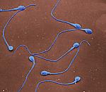 Human sperm. SEM, X2600