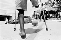 Angola. Province of Bié. Kuito. The town was heavily destroyed in 1993-1994 and 1998-1999 due to the intense civil war between the Government and Unita. Hospital. ICRC (International Commitee for the Red Cross) Orthopaedic programme. Beneficiaries are the lower limb amputees. Fitted with a  new prothese on the right leg, a patient plays football for the first time while the other patient still uses his crushes to move his body. He is also waiting to get his own prothese.These men will all remain physically handicapped. © 2000 Didier Ruef