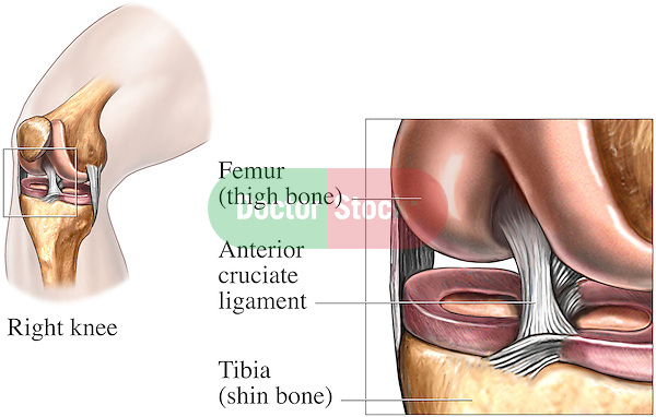 This stock medical illustration features two views of the knee joint. The first is an antero-medial view showing the right knee joint superimposed on a male bent knee. The second is an enlargement of the joint with labels identifying the anterior cruciate ligament (ACL), meniscus covering the tibial plateau and the tibia (shin bone).