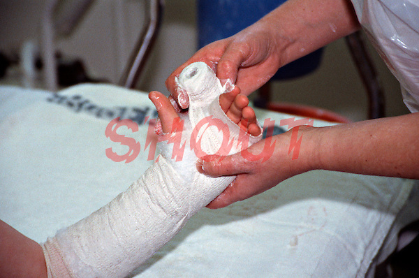 Plastering an adults broken wrist. This image may only be used to portray the subject in a positive manner..©shoutpictures.com..john@shoutpictures.com