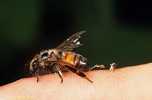 1B09-002d   Honeybee leaving its stinger behind on human finger -  Apis mellifera