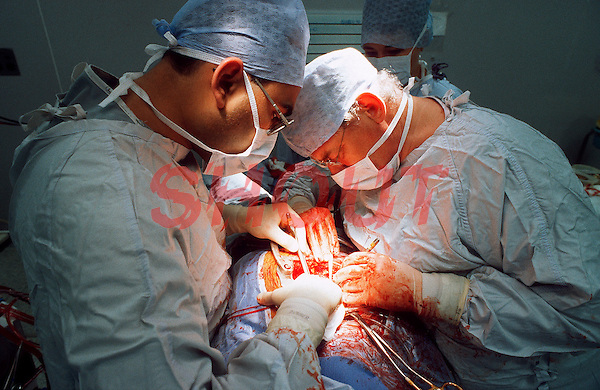 Surgeons performing heart transplant surgery in a hospital operating theatre. The surgeon has opened the patients chest with protractors and is using a pair of forceps. This image may only be used to portray the subject in a positive manner..©shoutpictures.com..john@shoutpictures.com