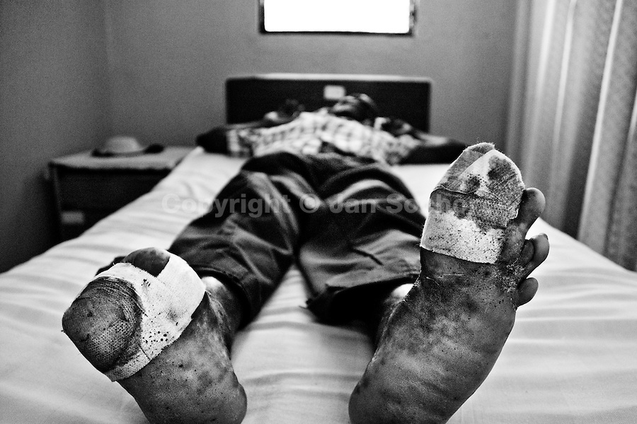 A leprous man waits for an ambulatory treatment in the Hopital Cardinal Leger in Leogane, Haiti. Although the effective treatment for leprosy appeared already in the 1940s, the disease has not been eradicated yet. The treatment is expensive and therefore was not adopted in most endemic countries.