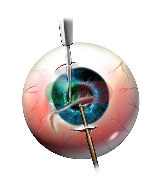 Development of cataract and sinechie as a subsequent condition after eye laceration and initial repair. An anterior mechanical vitractor is used to remove the cataract and an iris hook is used to reposition the iris in its place after removing the synechie.